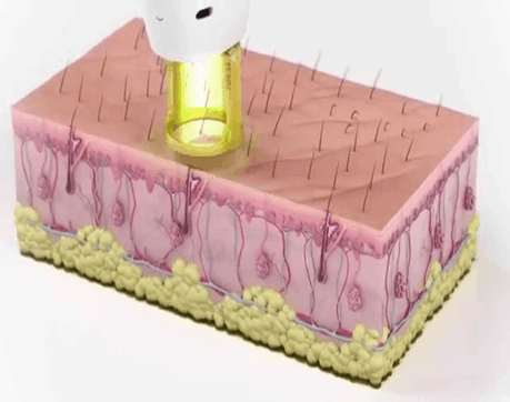 Laser Removal