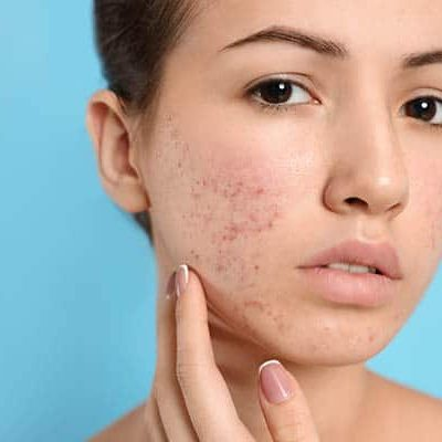 Teen girl with acne problem on light blue background